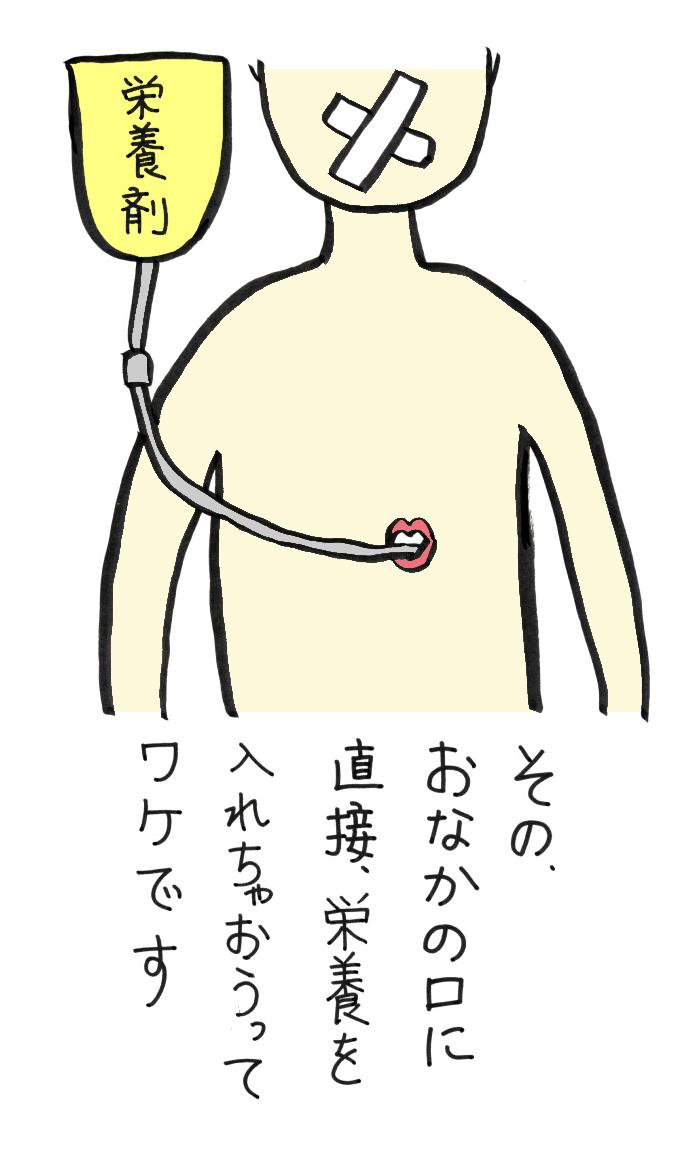 胃ろうをすすめられました☆医療・介護漫画「NOBORUちゃん